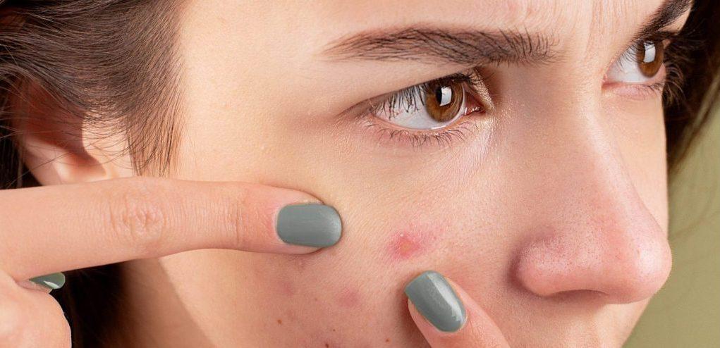 Se débarrasser de l'acné